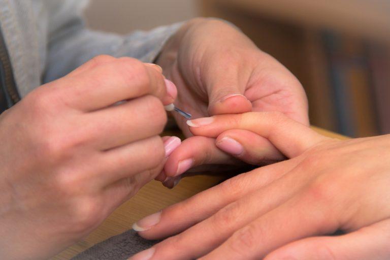 meest voorkomende nagelaandoeningen nagelstylisten