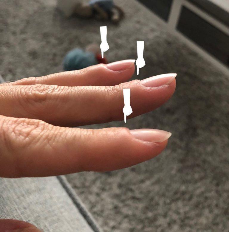 proximal nail fold